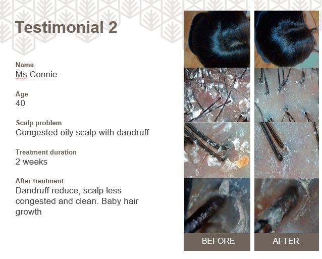 Testimoni Ha'labo Hair & Scalp Management