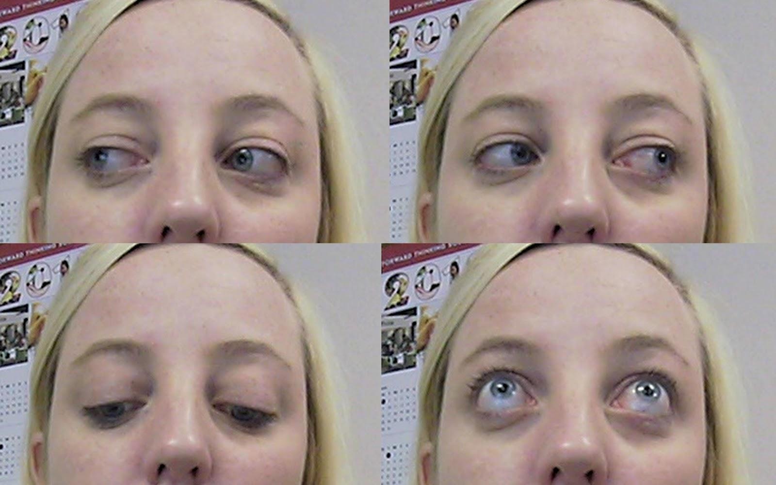 Quarterlife Ramblings Thyroid Eye Disease And Orbital Decompression