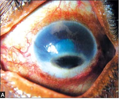 Figs 10A and B: This picture shows a black mass at the inferior edge that might be mistaken for iris prolapse through a perforated cornea. Examination of this lesion demonstrated this to be a fungal mass caused by dematiaceous fungi