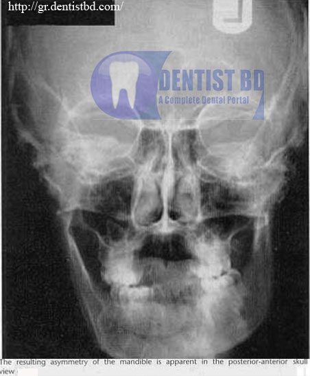 2 Condylar hyperplasia   <stro data-recalc-dims=