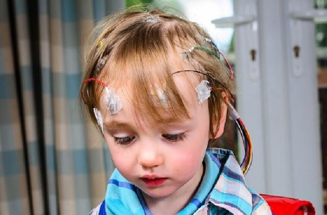 penyebab epilepsi pada anak