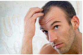 All about Follicular unit transplant(FUT) hair treatment