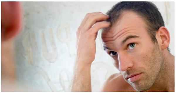 All about Follicular unit transplant(FUT) hair treatment