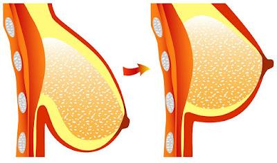 Comment combattre la flaccidité des seins
