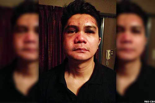 Mauled Vhong Navarro speaks up on Buzz ng Bayan: I'm not a rapist