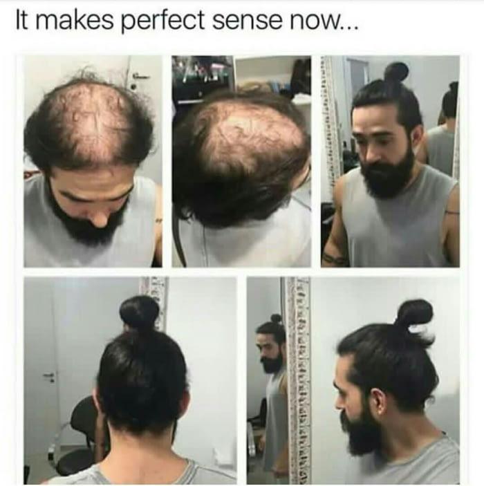 Coupe de cheveux homme avec calvitie