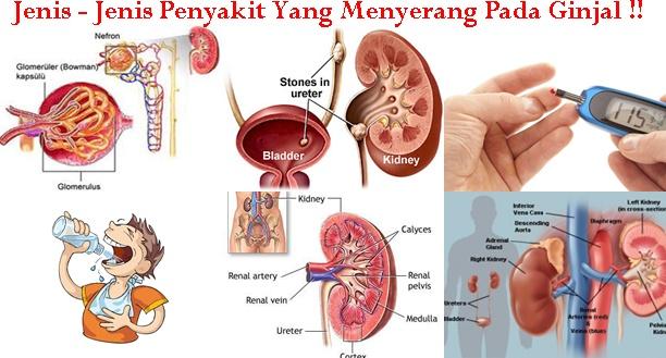 Gejala Penyakit Ginjal Kronik