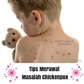Set shaklee untuk masalah chickenpox