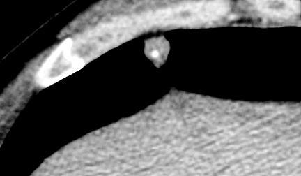 o que significa nodulo calcificado na mama