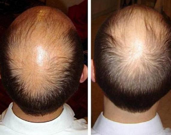 cara mengatasi rambut rontok dari akar terampuh