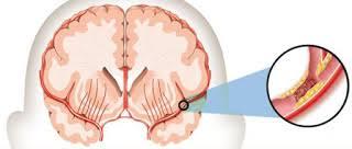Obat stroke alami paling mujarab