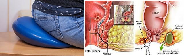 Pengobatan Fistula Ani, Cara Menyembuhkan Penyakit Fistula Ani 100% Aman, Efektif Dan Cepat Tanpa Operasi