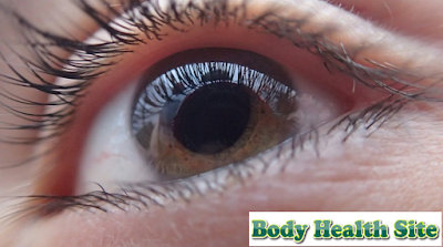 Understanding, Causes, Types, diagnosis, Treatment of Glaucoma