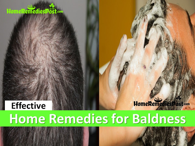 Home Remedies for Baldness, How To Get Rid Of Hair Loss, How To Get Rid Of Baldness, how to stop hair loss,