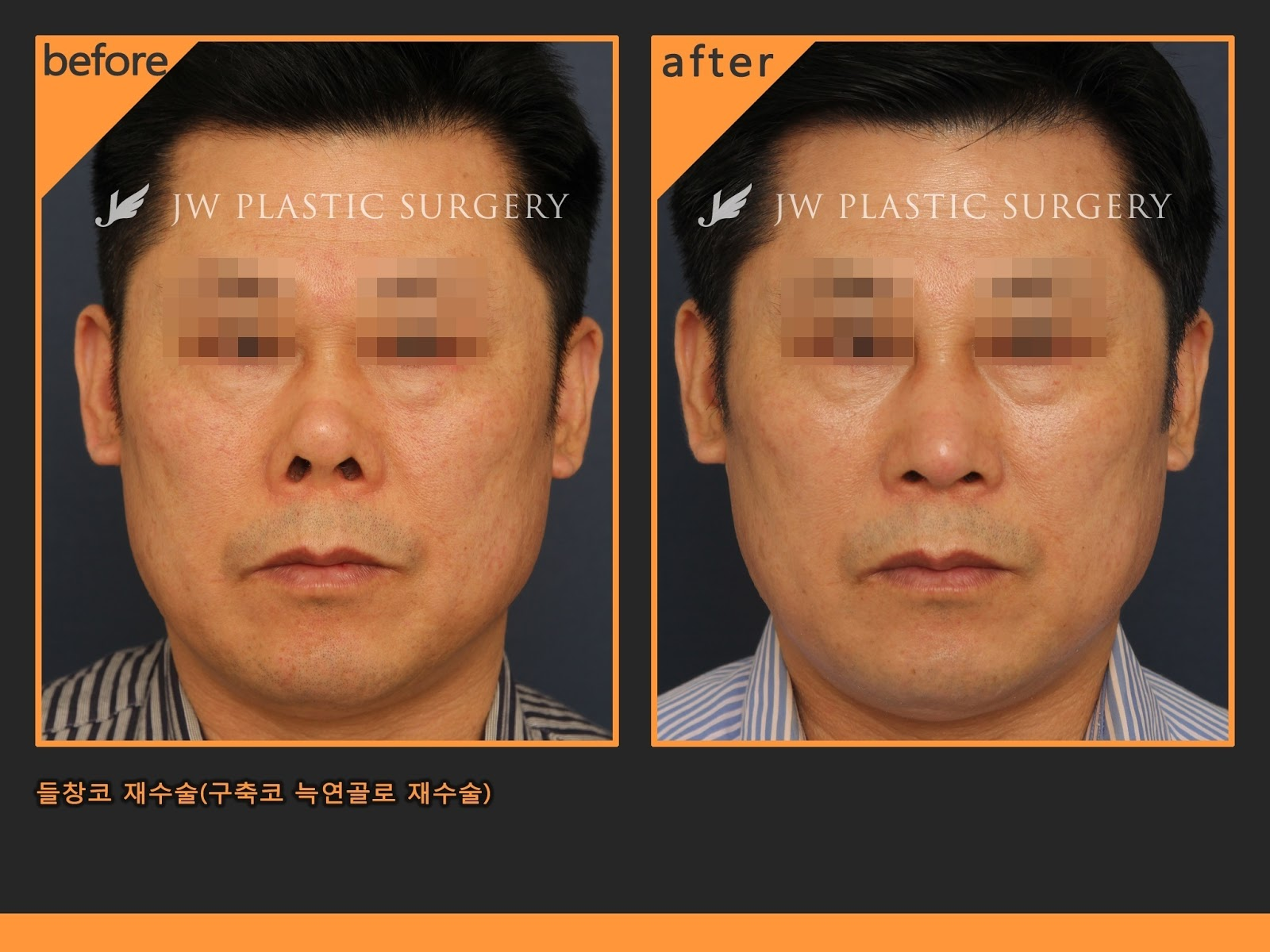 Differences Between Female Rhinoplasty And Male -7932