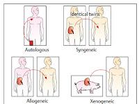 Imunologi Transplantasi