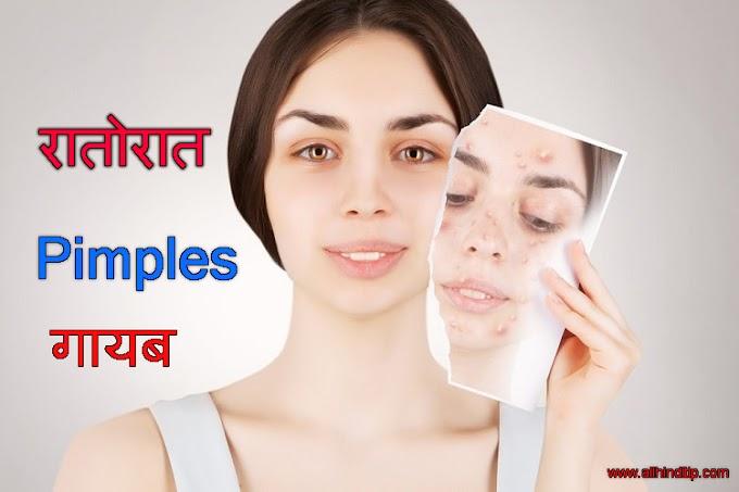 चेहरे से Pimple Kaise Hataye - All Hindi Tips