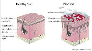remedios naturales para psoriasis