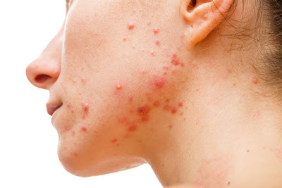 A woman with acne all over her jawline.