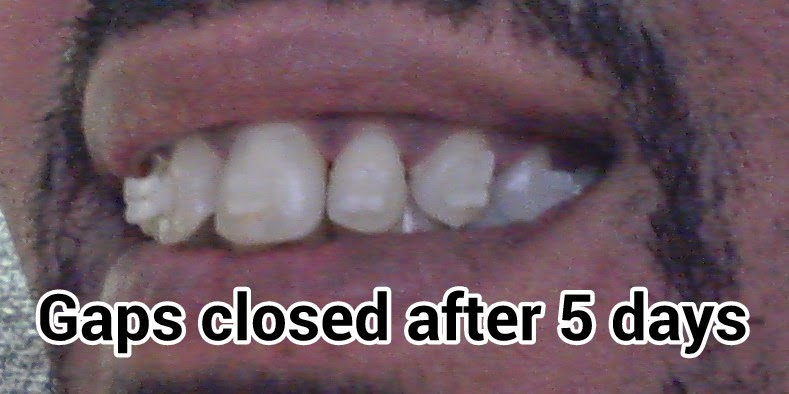 I Installed My Own Braces At Home