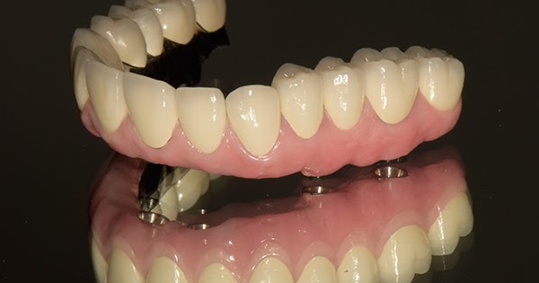 Dental Implants To Bring Your Confidence Back