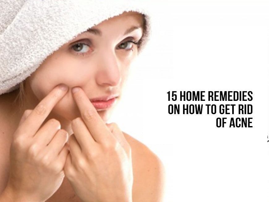 15 Natural Remedies to Clear Up Acne Scars