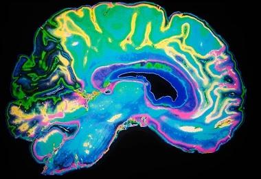 trabalho de turnos envelhece cerebro
