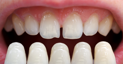 Achieve Celebrity-Like Smile with Dental Veneers