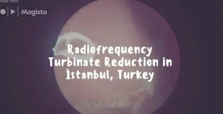 Turbinate Hypertrophy - Treatment of Turbinate Hypertrophy - Radiofrequency Reducing For Treatment of Turbinate Hypertrophy - Turbinate Enlargement - Radiofrequency Turbinate Reduction in Istanbul - Treatment of Inferior Turbinate Hypertrophy -  Treatment of Inferior Turbinate Hypertrophy in Istanbul -  Treatment of Inferior Turbinate Hypertrophy in Turkey