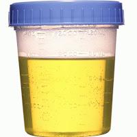 Culoarea urinei - indiciu de hidratare