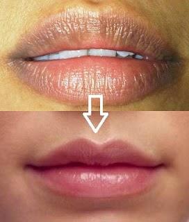 cara mengatasi bibir keriput secara alami