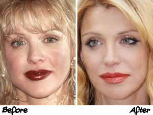 Courtney Love Plastic Surgery Before And After Photos
