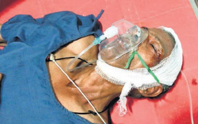 शाम को बेटे की बारात में जाना था डायल-100 ने कोमा में पहुंचा दिया | INDORE NEWS