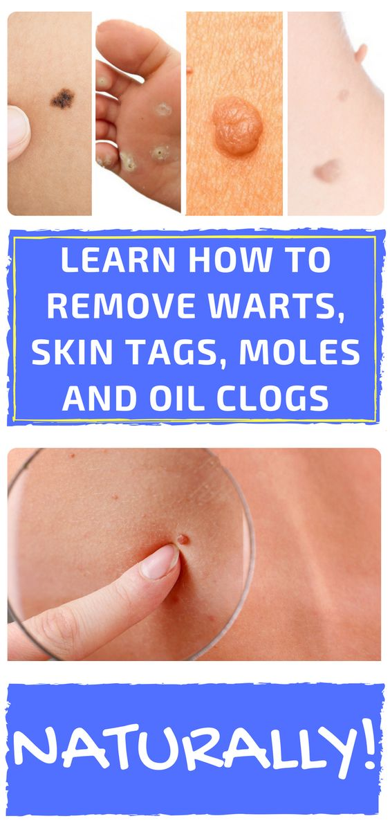 How To Remove Skin Tags With Natural Remedies