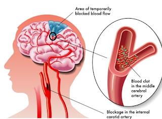 kerusakan otak karena penyakit atau pembuluh darah yang rusak