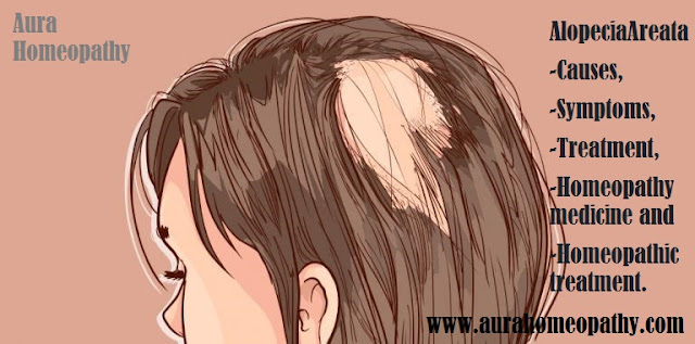 Homeopathic Doctor In Faridabad For Hairloss Alopecia Areata : Dr. Abhishek Kasana