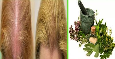 تخلصي من الصلع نهائياً بعد الان دون اجراء اي عمليات جراحية او عمليات زراعة الشعر