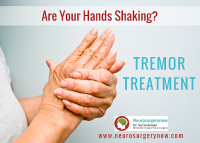 tremor treatment