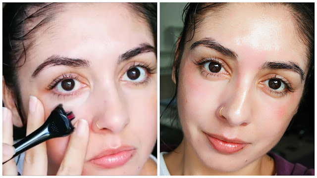 ácido hialurônico, pele bonita, pele mais lisa, ácido, regenerador de pele, rejuvenescedor de pele, máscara tensora, dermaroller, pós dermaroller, antirugas, tratamento de pele