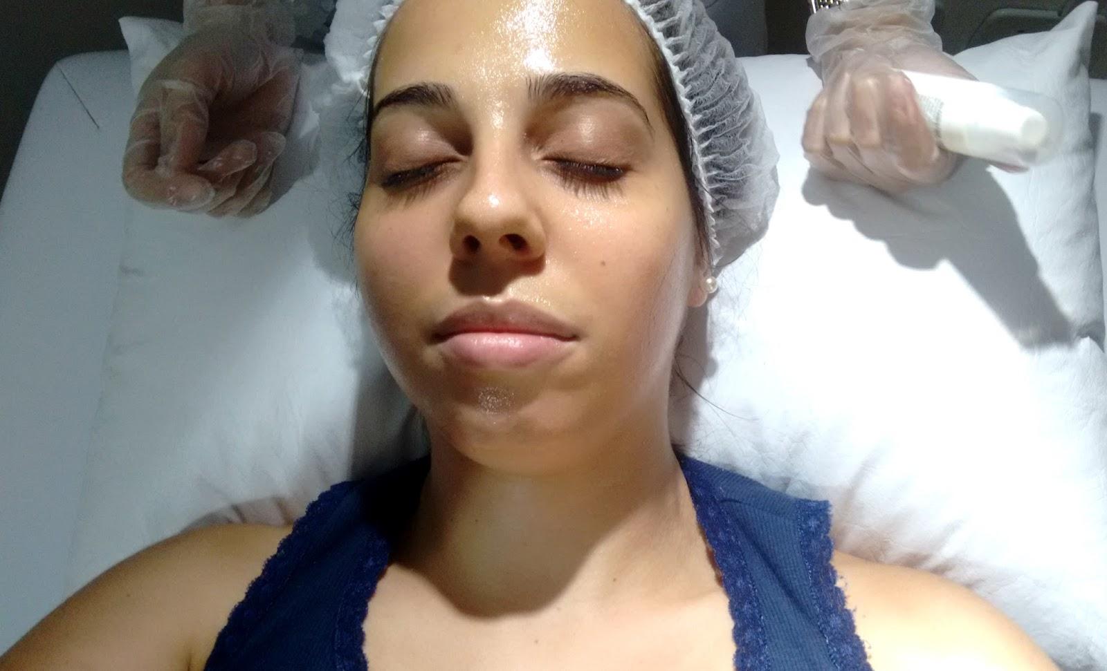 O pigmentary nota na pele do membro