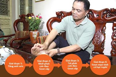 Phương pháp điều trị bệnh Gút theo từng giai đoạn bệnh