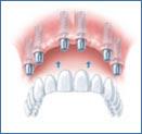 Todo lo que debes saber sobre los implantes dentales 6