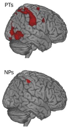 図:AONとrTPJの活動 理学療法士の