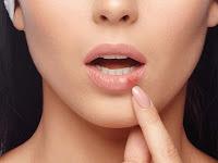 5 Gejala Kanker Mulut yang Sering Dianggap Sariawan Biasa