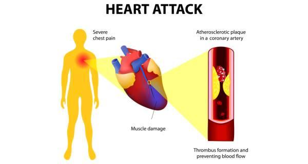 30 easy ways to prevent heart attacks i paleo diet if you have these agitation signs of heart forcefulness you should call your local emergency number right away ccuart Images
