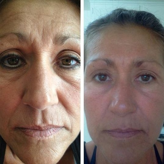 Facial Yoga - Regenerate Your Face Skin For A Non-Surgical