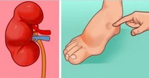 5 façons qu'a votre corps pour vous annoncer un AVC à venir – les symptômes cachés que tout le monde doit connaitre
