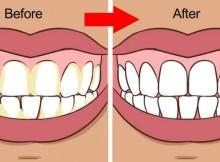 Cara Cepat Memutihkan Gigi Dengan Baking Soda Dan Jeruk Nipis
