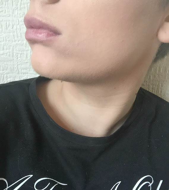 lips after plumping