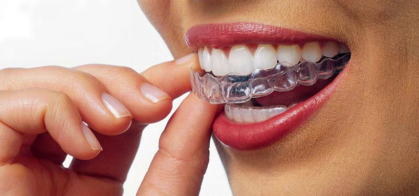 Tutti vogliono un sorriso perfetto: sempre più adulti chiedono l'apparecchio per i denti